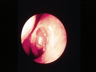 Endoscopic view of a nasal polyp